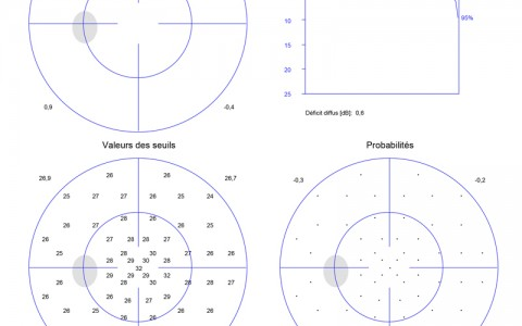examen champs visuel